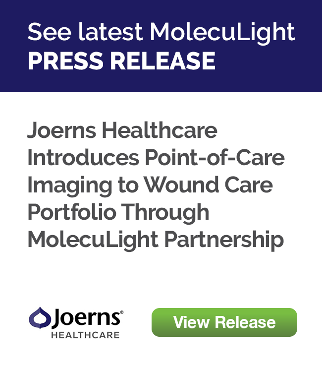 Joerns Healthcare Introduces Point-of-Care Imaging to Wound Care Portfolio  Through MolecuLight Partnership